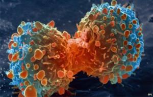 seguros-oncologicos